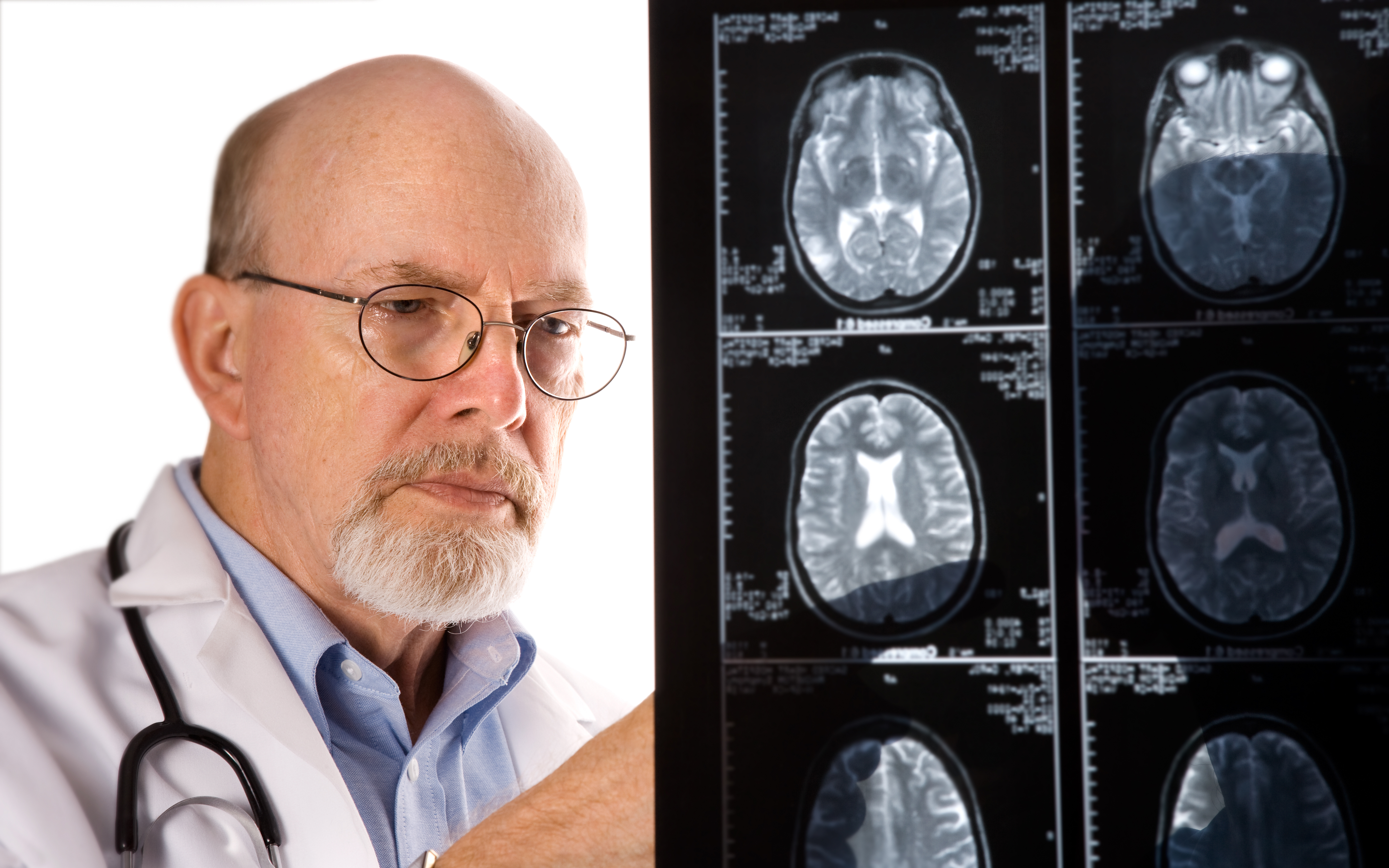 Other Diseases That Cause Alzheimer's Symptoms
